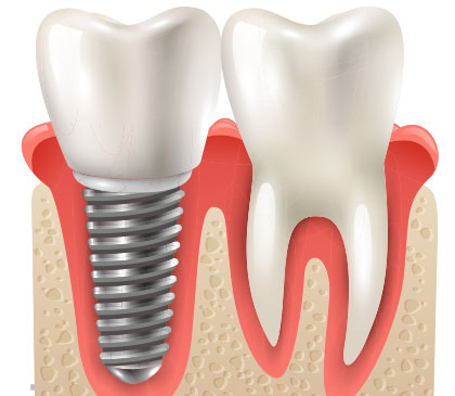 Dental Implantes Ocean Dental Burnaby